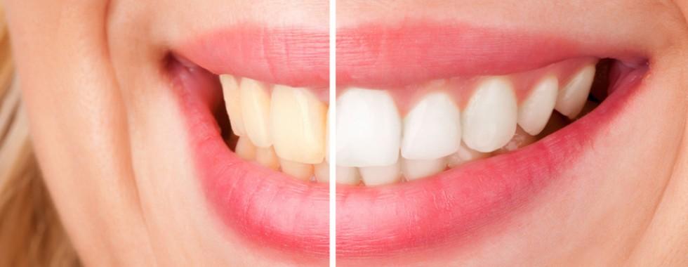 Teeth Whitening in Kalamzoo